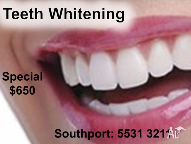 Teeth Whitening Gold Coast Specials $650